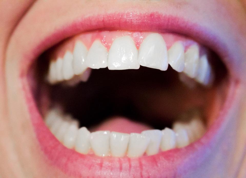teeth-1652937_960_720